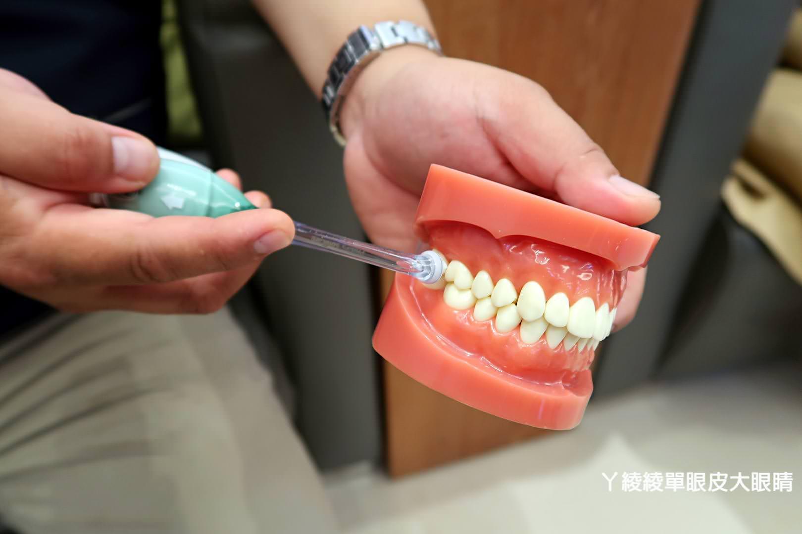新竹牙醫推薦日光翡麗牙醫診所|美齒貼片說明會分享