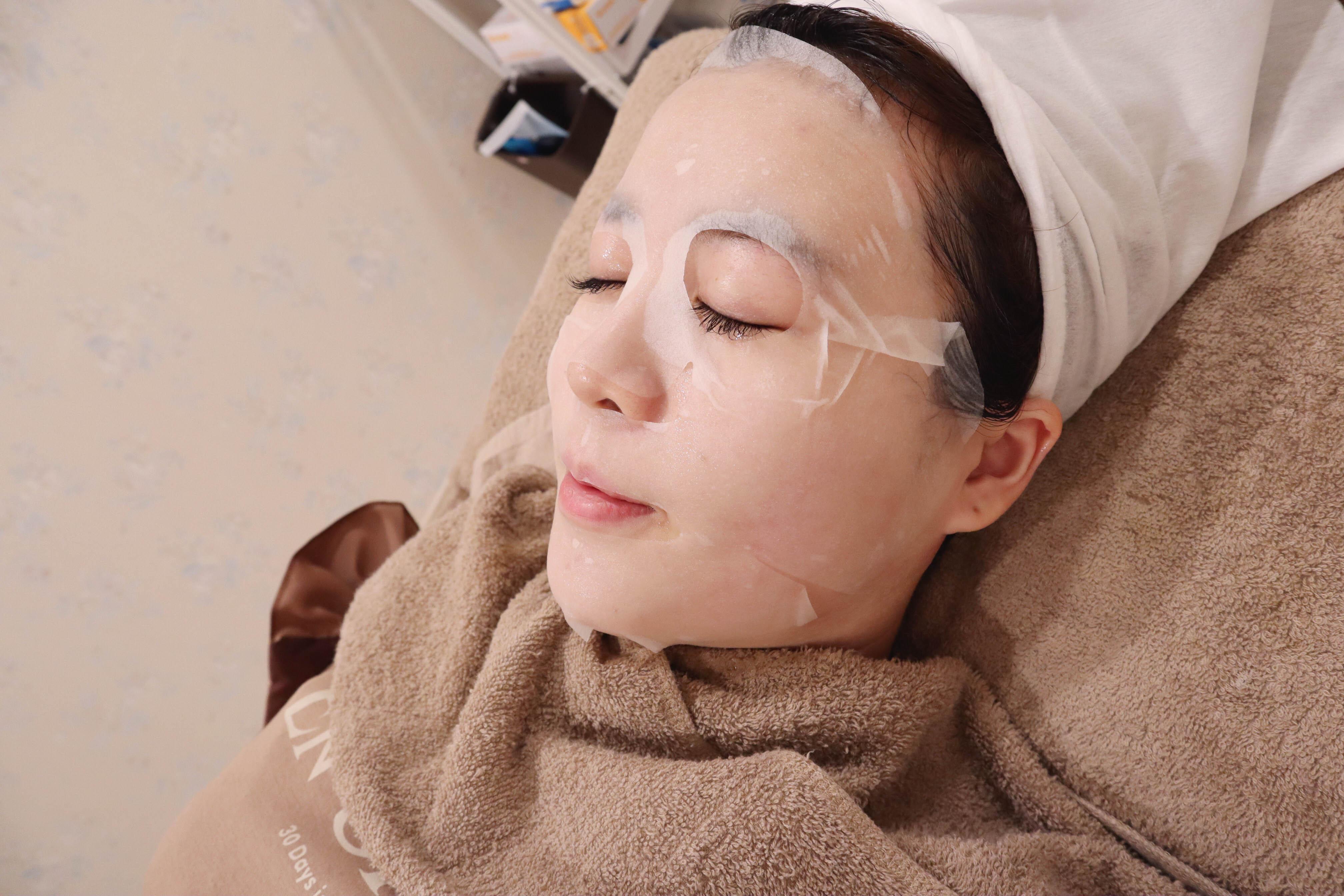 淨妍時尚醫美新竹店|Utims優提斯音波拉提體驗分享,跟雙下巴和嘴邊肉說掰掰