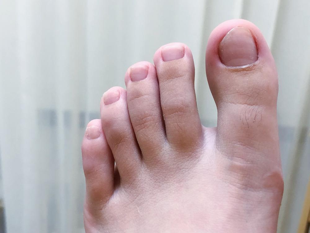 新竹美甲推薦Miss M. nail studio!腳指甲矯正過程心得分享,趾甲嵌肉、凍甲掰掰