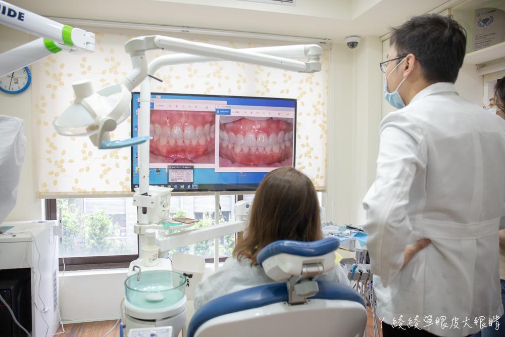 新竹牙醫推薦品味牙醫診所!牙齒冷光美白推薦,我的牙齒美白日記及牙齒居家美白分享